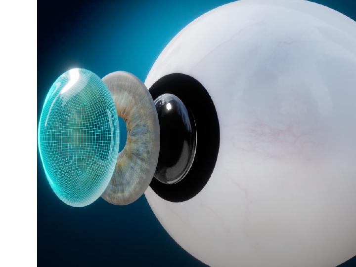 Complete Ocular Higher Order Aberration Measurement by OVITZ