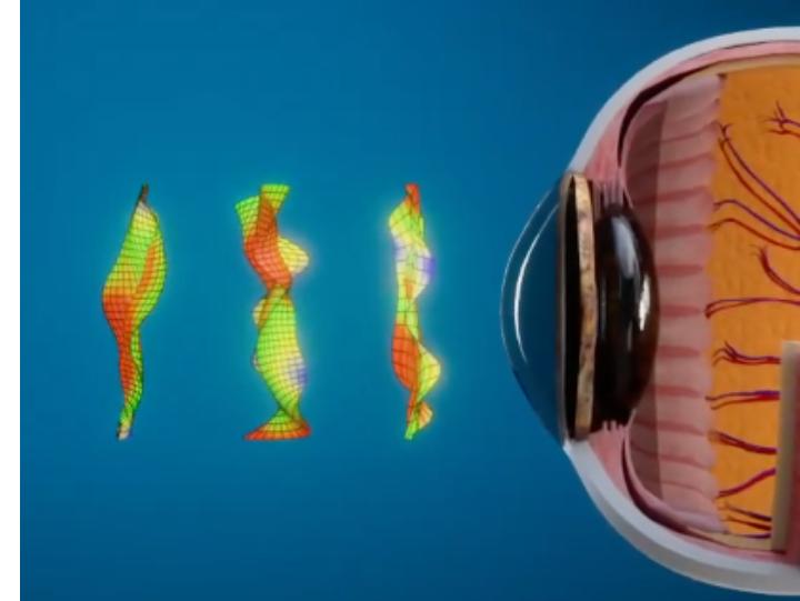 Proprietary Higher Order Aberration Lens Design Algorithm - OVITZ ARES Scleral Lens