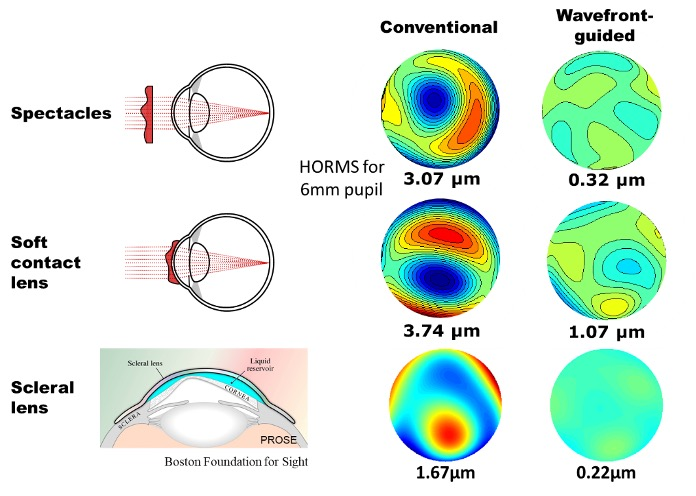 wavefront guided contact lens